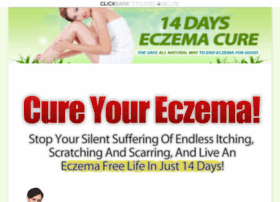 Eczema Ointment For Babies Websites And Posts On Eczema