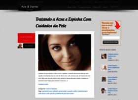 acne-e-espinha.qns.com.br