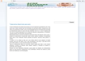 acne-espinhas-cravos.blogspot.com