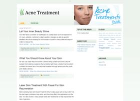 acne99.blogspot.com