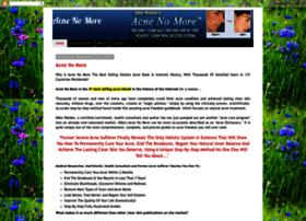 acnenomore-treatment.blogspot.com