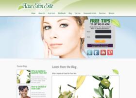 acneskinsite.com