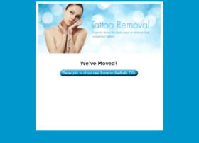 aesthetictv-tattoo-removal.com