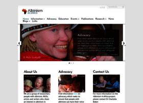 albinism-in-africa.com