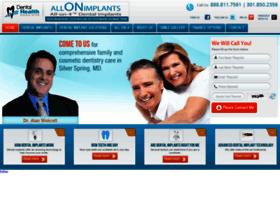 allonimplants.com