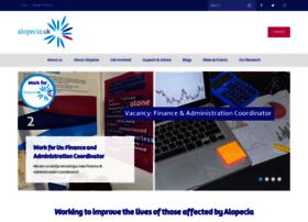 alopeciaonline.org.uk