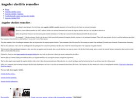 angular-cheilitis-remedies.weebly.com