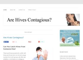 arehivescontagious.com