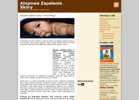 atopowe-zapalenie.infoabc.pl