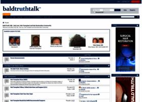 baldtruthtalk.com