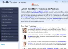 besthairtransplant.com.pk