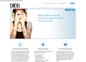 blinktattooremoval.com