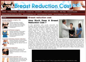 breastreductioncostguide.com