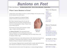Bunionsonfeet.org