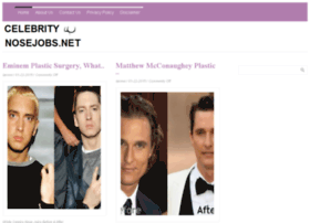 celebritynosejobs.net