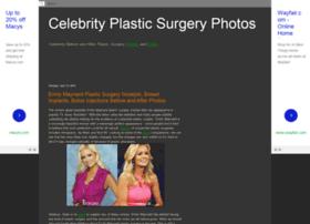 celebrityplasticsurgerypics.blogspot.com