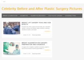 celebritysurgery.us