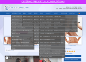 chicagoliposuction.com