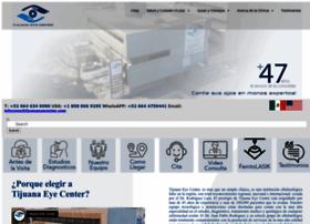 clinicadeojosdetijuana.com