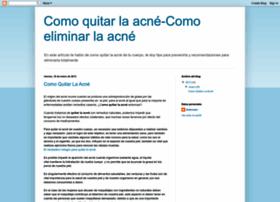 como-quitar-la-acne.blogspot.com