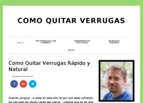 comoquitarverrugas.net