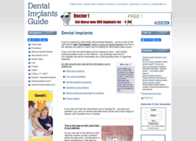 dental-implants-guide.com