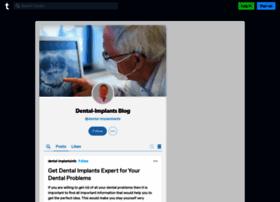 dental-implantsinfo.tumblr.com