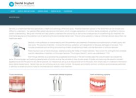 Dentalimplant411.com
