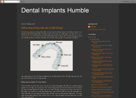 dentalimplantshumble.com