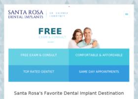 dentalimplantssantarosabyvalerialawrence.com