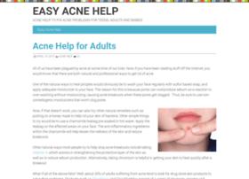 easy-acne-help.com