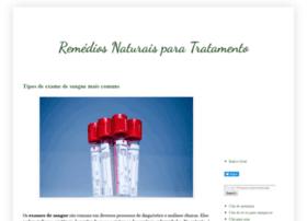economizecomplantas.blogspot.com.br