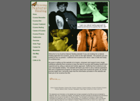 eczema-natural-healing.com