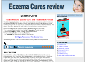 eczemacuresreview.com