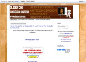 edsongcano.blogspot.com