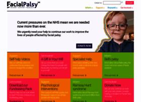 facialpalsy.org.uk