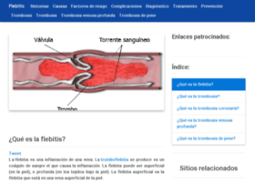 flebitis.net
