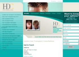 hair-transplant.org.uk