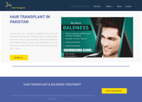 hairtransplantationpakistan.com