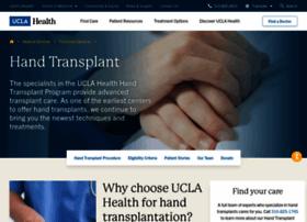 handtransplant.ucla.edu