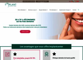 implantcenter.fr