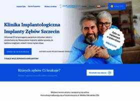 implantologia.szczecin.pl