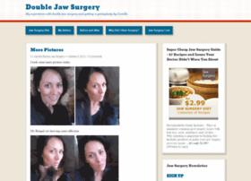 jawsurgerycamilla.wordpress.com