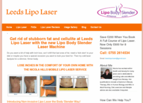 laserlipoyorkshire.co.uk