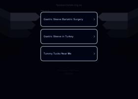 liposucciones.org.es