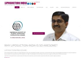 liposuction-india.com