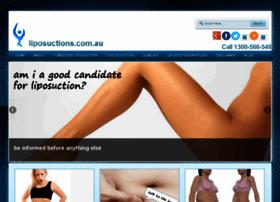 liposuctions.com.au