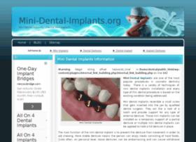 mini-dental-implants.org