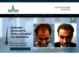 mollurahairtransplant.com