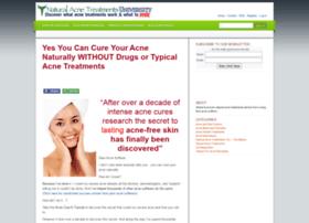 natural-acne-treatments.com